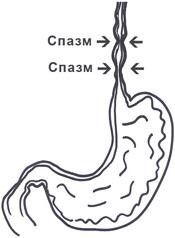 Диффузный спазм пищевода