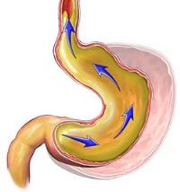 нижнепищеводный сфинктер лечение
