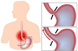 рефлюкс из желудка в пищевод