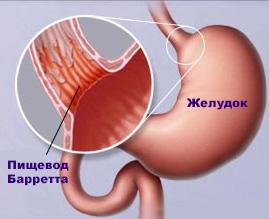 симптомы пищевода Барретта
