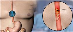 причины рака пищевода