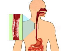возникновение рака пищевода