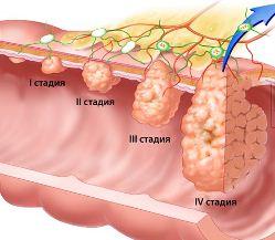 классификация рака пищевода