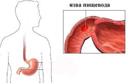 пептическая язва пищевода