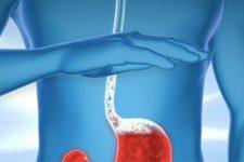 Лечение изжоги с помощью блокаторов H2-гистаминовых рецепторов