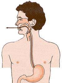 Укрепление пищеводного сфинктера физиотерапией через зонд