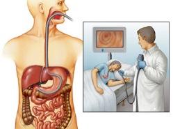 диагностика ГЭРБ с помощью ФГДС