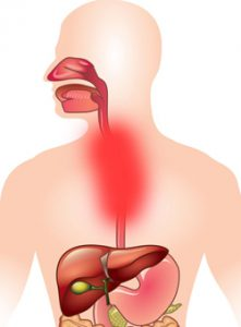 воспаление пищевода