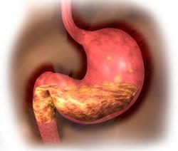 Повышенная кислотность желудка лечение домашних условиях