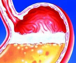 Что такое рск в диете