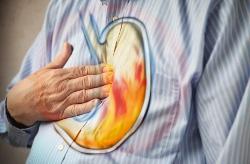 Минеральная вода при повышенной кислотности желудка