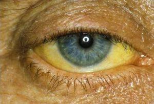 желтизна в глазах