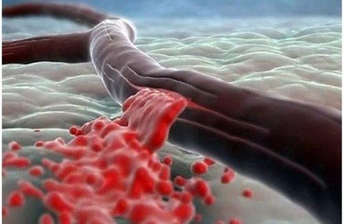 кровь вытекает из оголённого сосуда